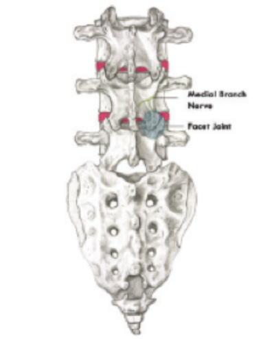 Lumbar Medial Branch Block - Ritu Bhambhani, MD, Abingdon, MD